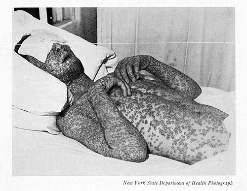 Baltimore smallpox, 1939