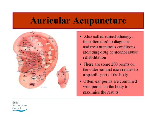Acupuncture Dc S Improbable Science